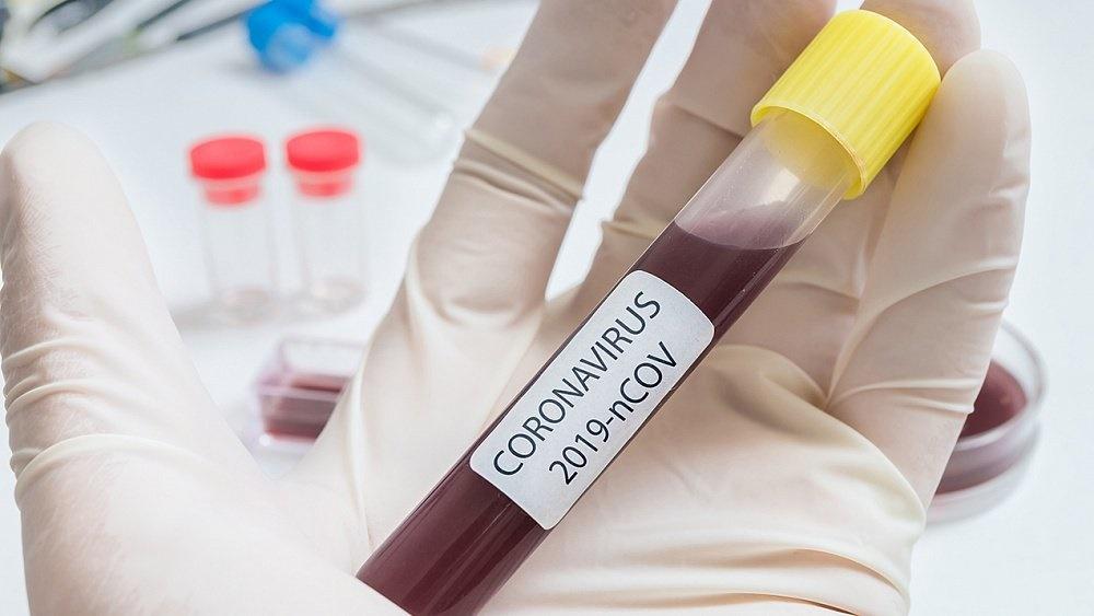 До пятидесяти возросло число заболевших коронавирусом в Челябинской области